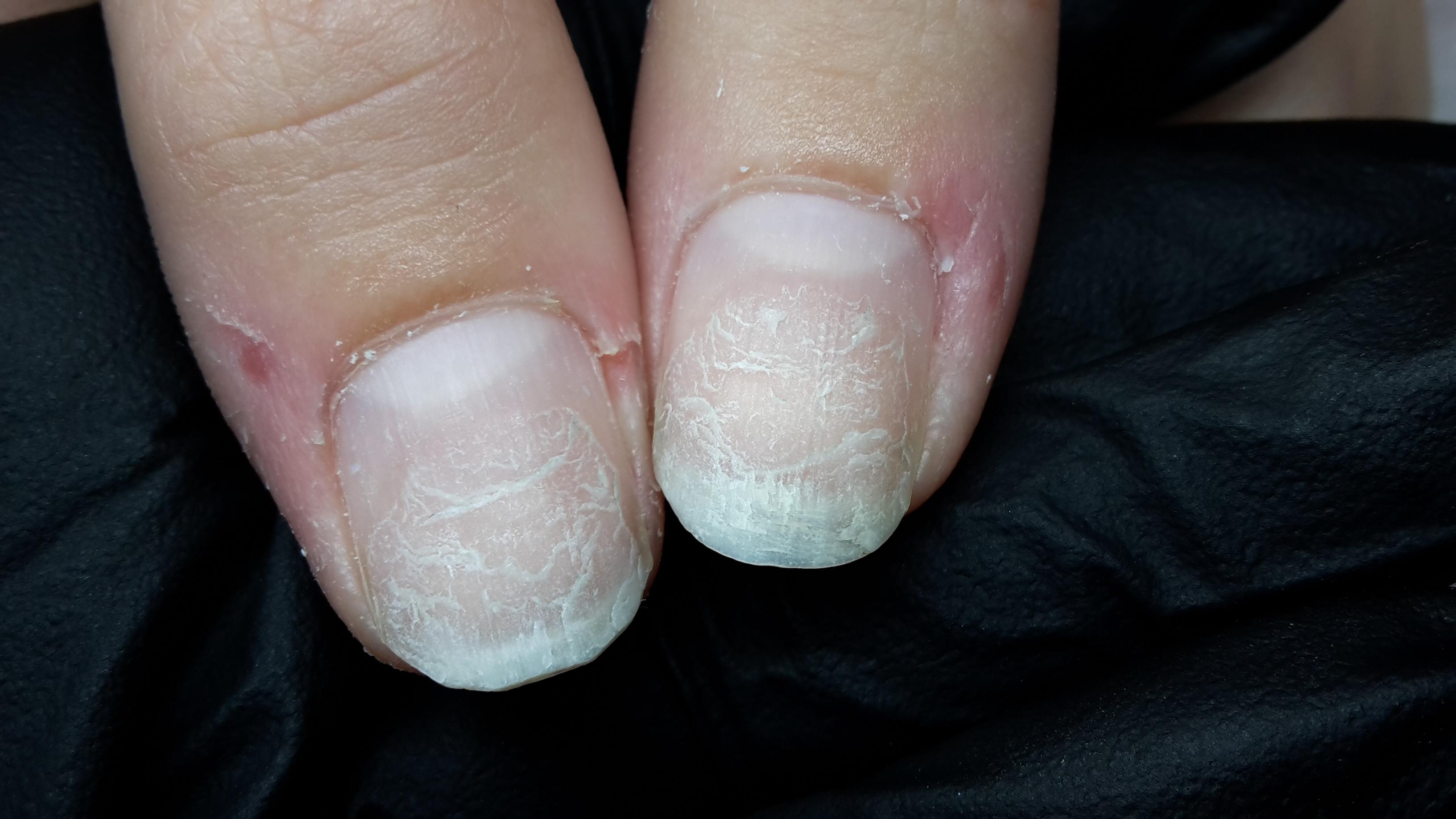 fjern akryl negle